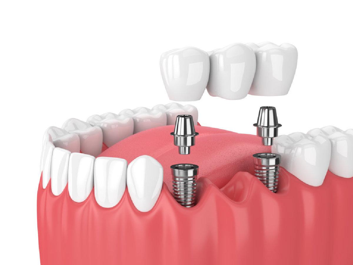 Multiple teeth