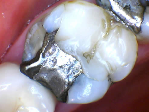 Fillings Before